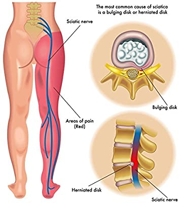 Flekosteel dolor músculos