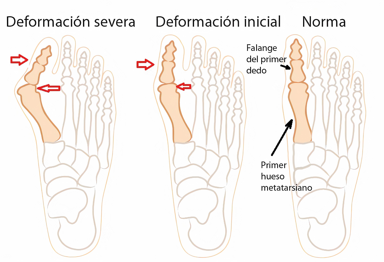 Deformidad del pie
