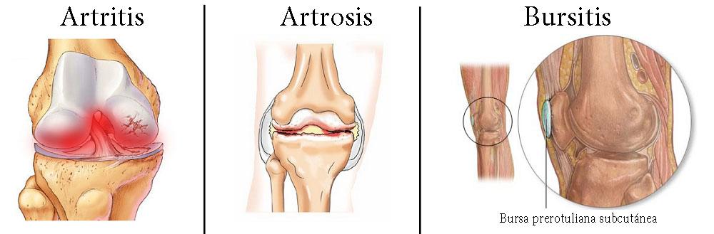 enfermedades de las articulaciones